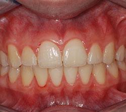 ortodonzia_5_post_250x222