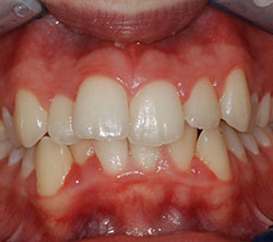 ortodonzia_5_pre_250x222