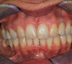 ortodonzia_post_01_250x222