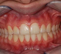 ortodonzia_post_03_250x222