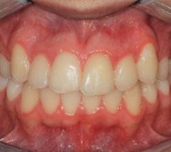 ortodonzia_post_04_250x222