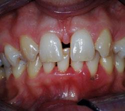 ortodonzia_pre_01_250x222