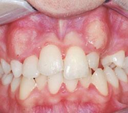 ortodonzia_pre_04_250x222